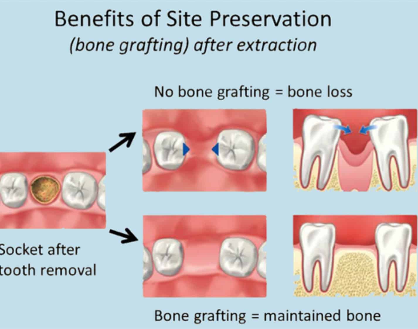 Oral Surgery – Bone grafts
