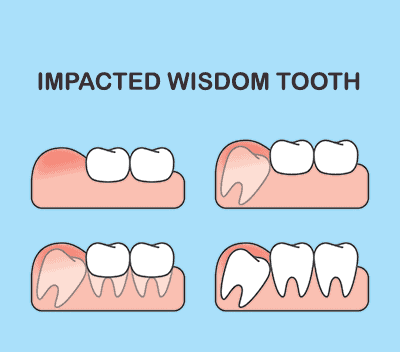 Wisdom Teeth and Wisdom Teeth Extractions